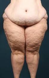 Fett und Dick – Trotz gesunder Ernährung und Sport