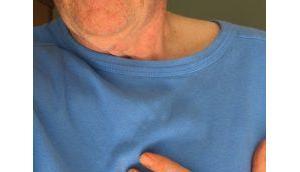 Herz-Rhythmusstörungen durch viel Alkoholkonsum