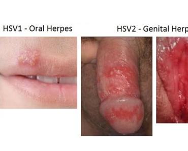 cara mengobati herpes genital