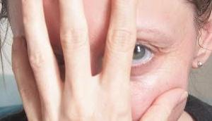 Finger weg! Warum eine ganz schlechte Angewohnheit Grund deine Hautprobleme sein kann