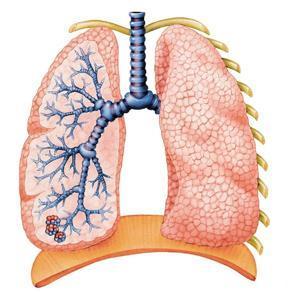 Raucherhusten ohne Zigaretten
