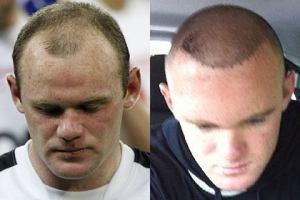 Wayne Rooney redet offen über seinen Haarausfall