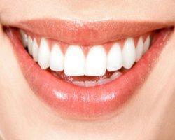 Was tun gegen Zahnschmelzabbau?