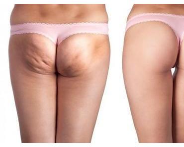 Cellulite...